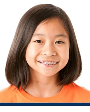 Children with braces Redwood Shores Orthodontics Redwood City CA