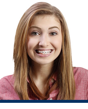 Braces System Redwood Shores Orthodontics Redwood City CA