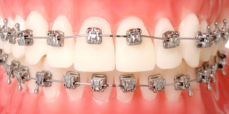 Wu-Orthodontics-in-Palo-Alto-CA-offers-H4-Self-Ligating-Braces