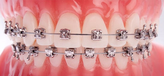 Pitts 21 Bracket System at Redwood Shores Orthodontics